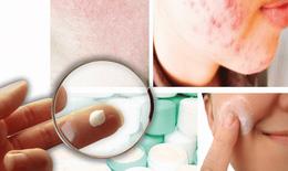 """Trường hợp """"hỏng da"""" vì kem trộn: Thêm cảnh báo việc  dùng bừa bãi corticoid"""