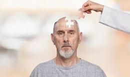 Bệnh Alzheimer phát hiện và điều trị?