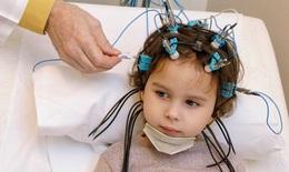 Thuốc trị động kinh có gây nhức đầu?