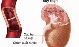 Phòng ngừa và điều trị bệnh lao thận hiệu quả