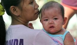 Philippines: Dịch sởi hoành hành, Tổng thống lên truyền hình kêu gọi cha mẹ đưa con em đi tiêm chủng