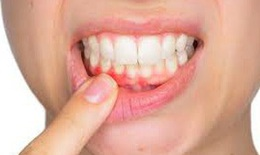 Viêm nướu răng - Chớ coi thường!