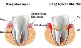 Viêm nha chu -Coi chừng mất răng…