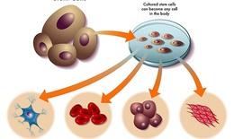 Làm trẻ hóa tế bào gốc - phương pháp điều trị MS tiềm năng