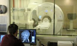 Quét não có thể giúp dự đoán hiệu quả của thuốc trị trầm cảm