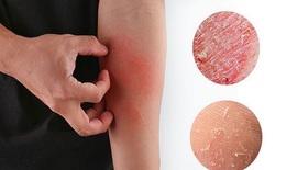 Các bệnh da thường gặp vào mùa lạnh
