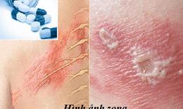 Trị bệnh zona, dùng thuốc kháng virus thế nào?