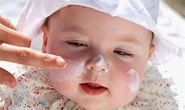 Chăm sóc bé bị khô da đúng cách