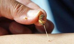 Nhồi máu cơ tim vì bị ong đốt