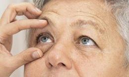 Sau phẫu thuật mắt bao lâu có thể chơi thể thao?