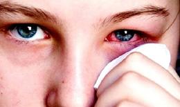 Ảnh hưởng của bệnh viêm kết mạc mùa xuân