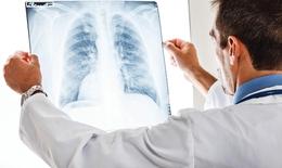 Xác định viêm phổi cấp do nhiễm COVID-19