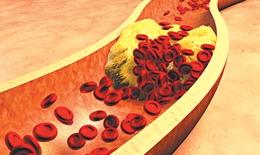 Điều trị tăng cholesterol sau 7 năm vẫn nhồi máu cơ tim