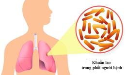 Các bệnh dễ nhầm với lao phổi