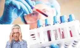 Xét nghiệm máu giúp chẩn đoán Alzheimer