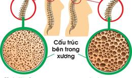 Cần sử dụng đúng thuốc trị loãng xương