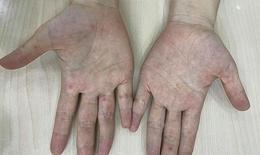 Người lớn chăm sóc trẻ mắc bệnh tay - chân - miệng: Không nên chủ quan