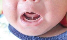 Dính thắng lưỡi ở trẻ nhỏ