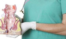 Bệnh trĩ - Đừng âm thầm chịu đựng