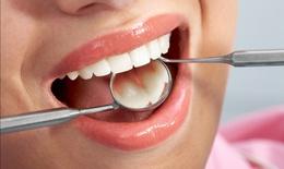 Cách hạn chế ê buốt răng