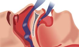 Ngừng thở khi ngủ làm tăng nguy cơ các vấn đề chuyển hóa, tim mạch