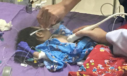 Bé trai 45 ngày tuổi suýt chết vì ho kéo dài không được điều trị