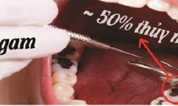 Amalgam – loại vật liệu hàn răng chứa Thủy ngân cần được loại bỏ