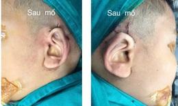 """Lần đầu tiên sửa chữa dị tật """"hai tai bỏ túi"""" bằng kỹ thuật mới"""