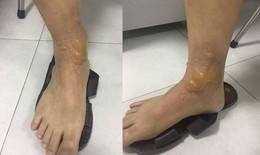 Quý ông bị bỏng nặng khi đi mát xa chân, phải cắt lọc ghép da