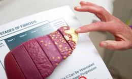 Đề xuất đưa thuốc mới chữa viêm gan C vào danh mục BHYT để người bệnh hưởng lợi