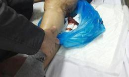 Suốt 70 năm nghĩ bị bệnh khớp, cụ ông phải cưa chân vì bệnh máu khó đông