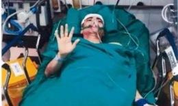 Tuyệt vọng khi biết em trai có khối u não lớn tưởng không qua khỏi, bác sĩ vẫn cứu sống ngoạn mục