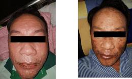 Hãi hùng khuôn mặt đầy bọng nước, trợt da 60% cơ thể vì dị ứng thuốc trị gout
