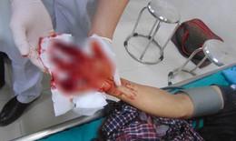 Một thanh niên bị máy làm mộc nghiền nát bàn tay phải, đứt lìa 3 ngón tay
