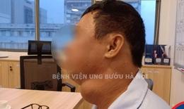 """Vét hạch cổ """"khủng"""" 7cm cho người đàn ông mắc ung thư tuyến giáp di căn, lệch mặt"""