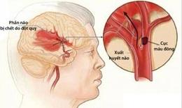 Cảnh giác với căn bệnh gây tử vong đứng hàng thứ 3 chỉ sau ung thư và tim mạch