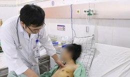 Hút thuốc lá 5 năm, thanh niên trẻ cấp cứu vì tràn khí màng phổi