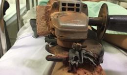 Máy bào gỗ găm vào chân người đàn ông gây tai nạn kinh hoàng