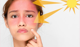 Tia UV ở ngưỡng rất cao, bác sĩ chỉ cách bảo vệ cơ thể, ai cũng cần biết