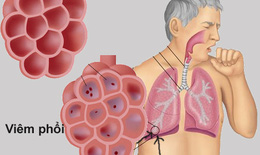 Bộ Y tế hướng dẫn chẩn đoán, điều trị viêm phổi ở người lớn, nhấn mạnh việc tiêm phòng