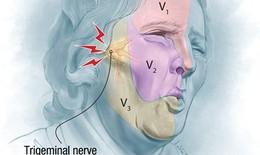 """Đau dây thần kinh số V - Cơn đau dữ dội như """"chết đi sống lại"""""""