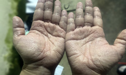 Tổn thương da ở nhân viên y tế liên quan găng tay, áo choàng bảo hộ phòng COVID-19