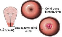 Viêm lộ tuyến cổ tử cung gây ung thư & vô sinh