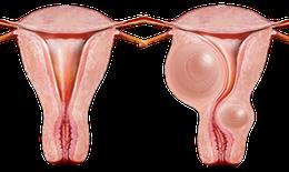 Bài thuốc tiêu u bí truyền: Điều trị hiệu quả u xơ tuyến vú, u xơ cổ tử cung