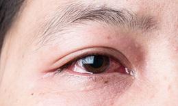 Bảo vệ mắt đúng cách trước dịch đau mắt đỏ.