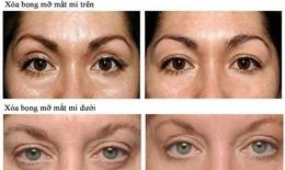 Làm gì để có đôi mắt đẹp hơn?