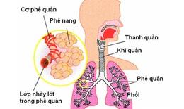Thảo dược đẩy lùi hen suyễn – hen phế quản COPD