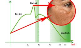 90% phụ nữ không biết cách điều trị nám da do nội tiết như thế nào?