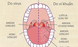Kháng viêm, tiêu viêm - mấu chốt phòng và đẩy lùi viêm họng, viêm amidan