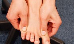 5 Sai lầm nguy hại khi chăm sóc bàn chân tiểu đường mùa lạnh